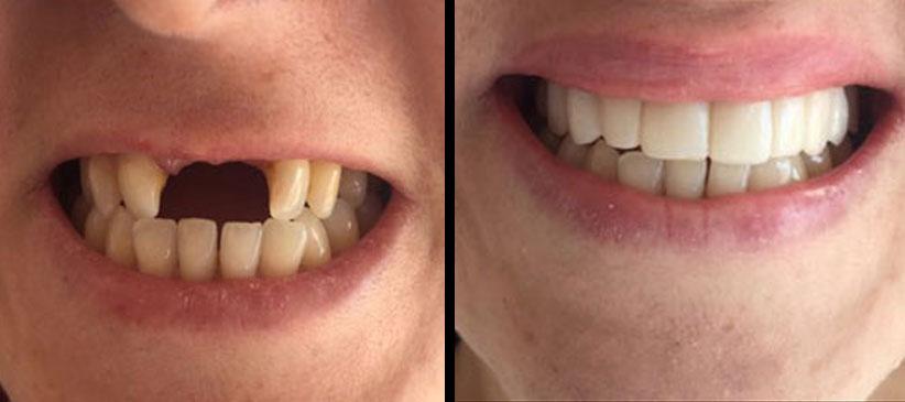 Implante, antes y después